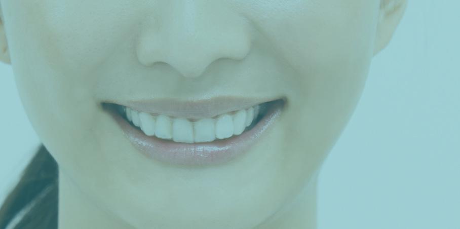 前歯の部分矯正の専門医院
